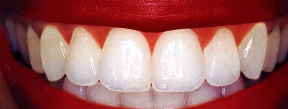 Beyazlamış Dişler